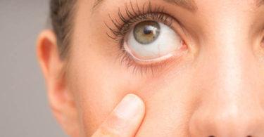 irritación ocular