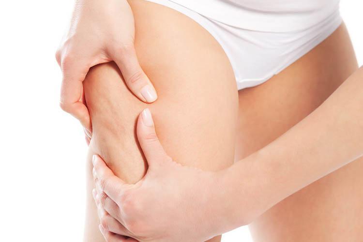 tratamientos estéticos celulitis