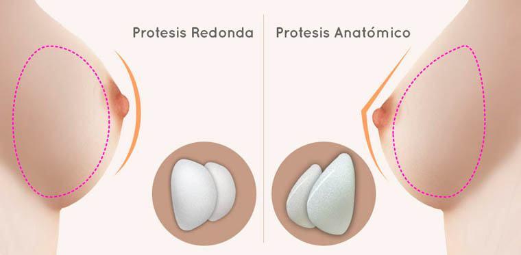 tipos de implante prótesis aumento mamario