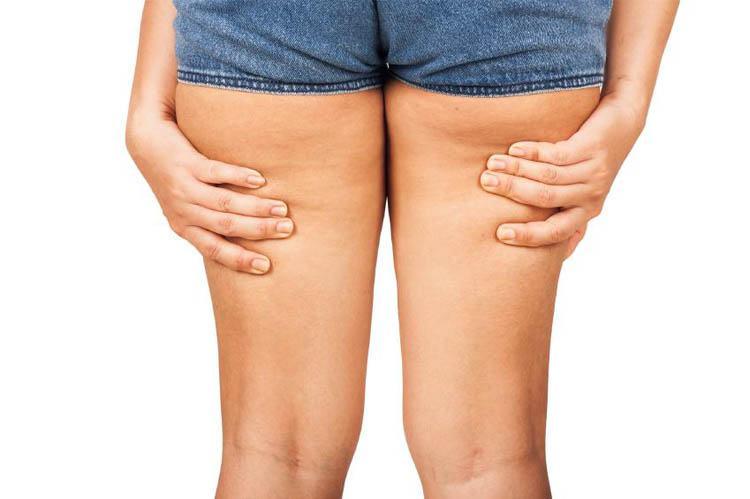 piernas gruesas