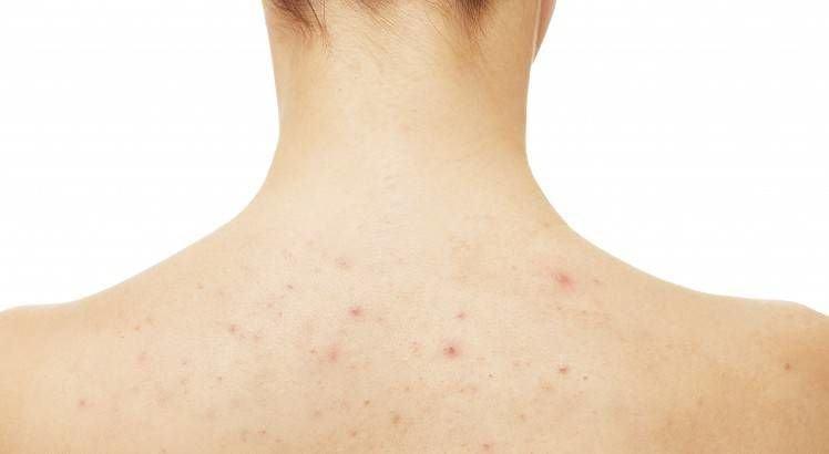 acné corporal