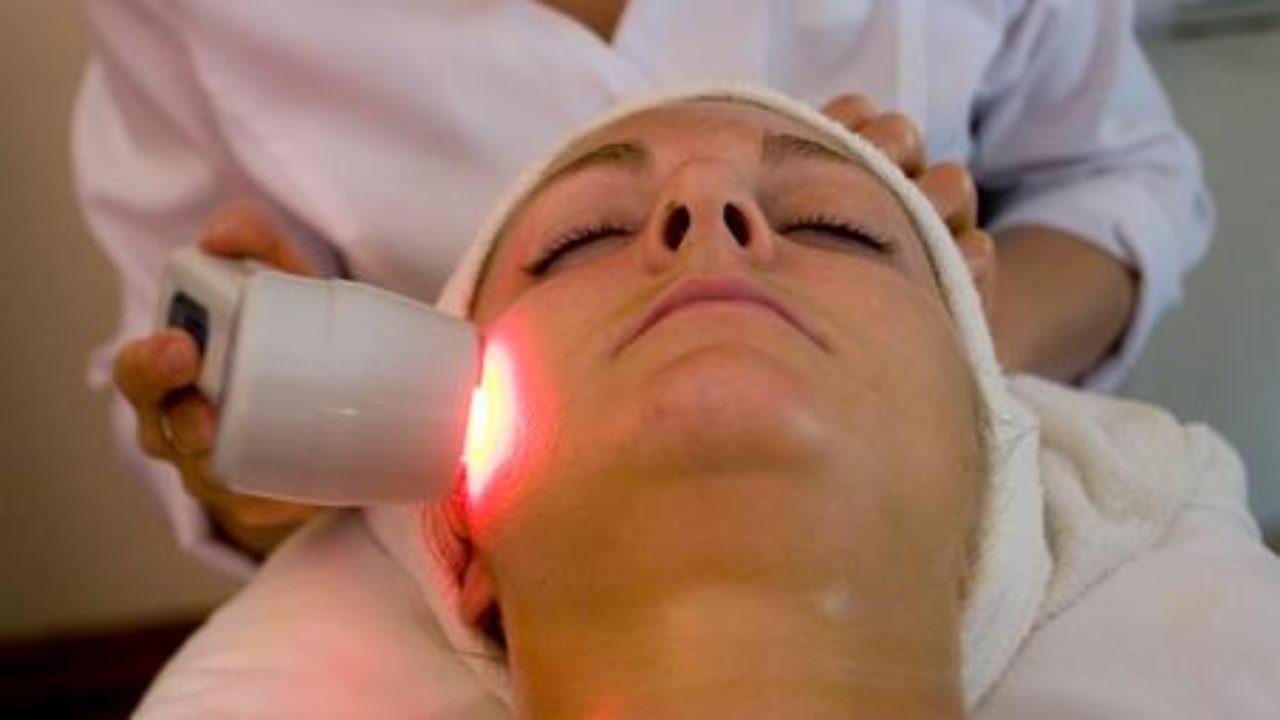se pueden quitar manchas de la cara con laser