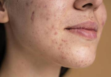 cutis propenso al acné