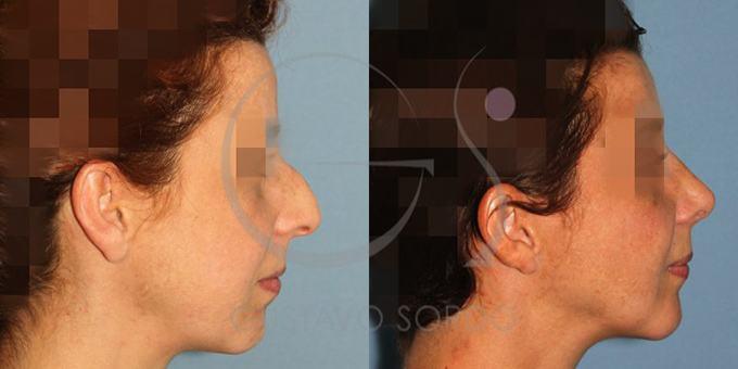 Antes y después de la rinoplastia ultrasónica