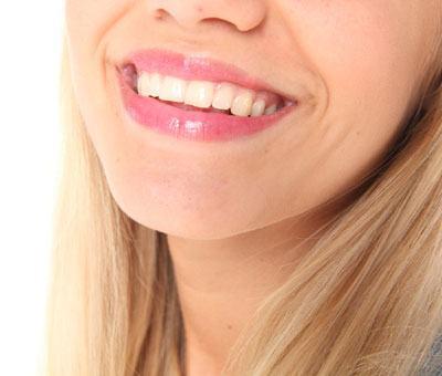 sonrisa-perfecta