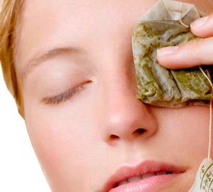 remedios caseros para los ojos rojos
