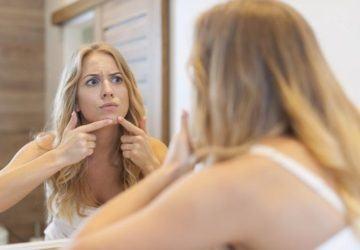 consejos prevenir acné