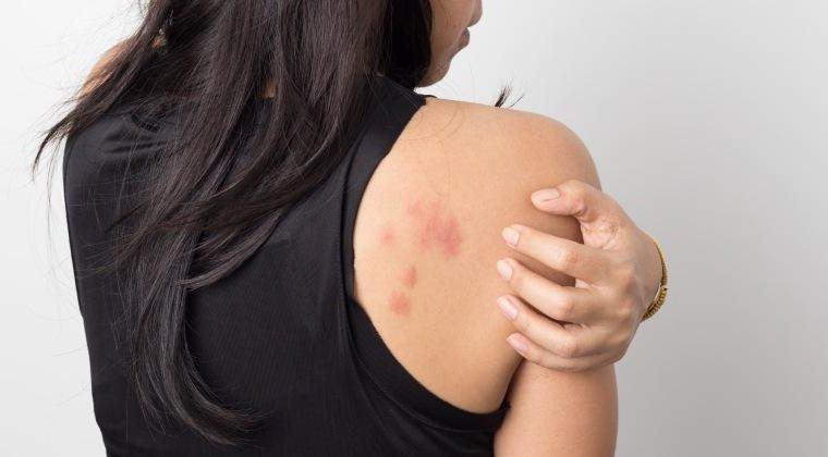 lesiones de la piel COVID-19